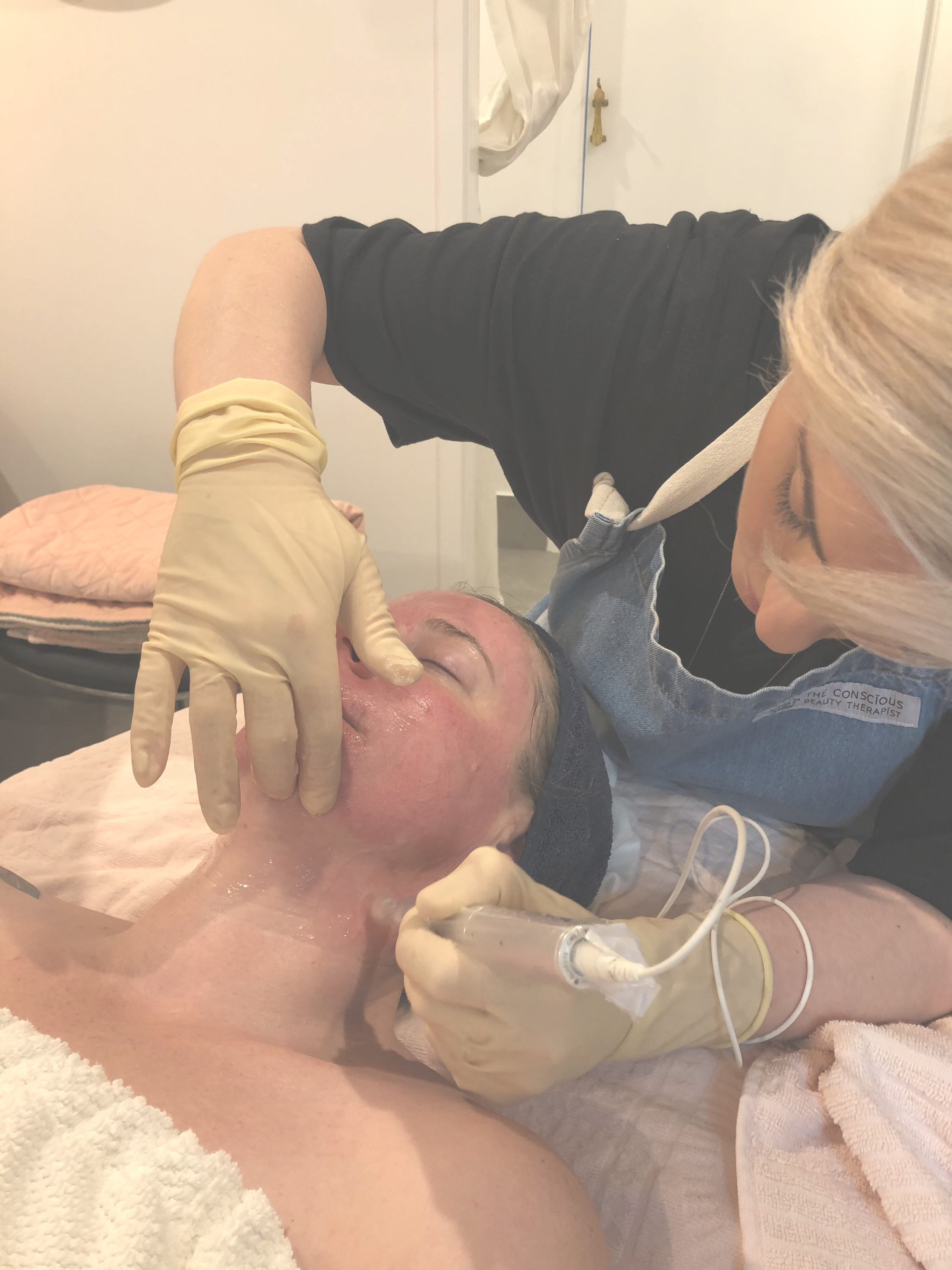 Exceed Skin Needling CONSULTATION