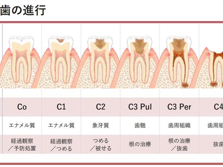 虫歯は痛みがある?