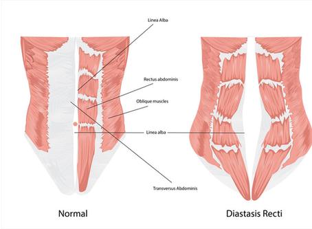 Help for Diastasis Recti