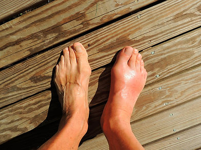 Swollen and red foot with lymphedema
