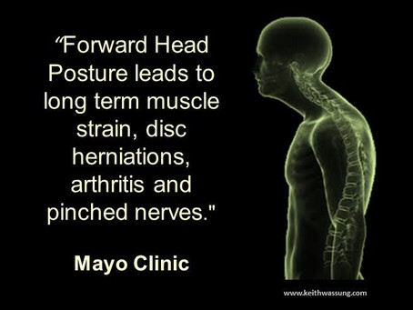 Issues from Forward Head Posture