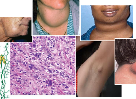 Lymphoma, what is and how to find and treat it