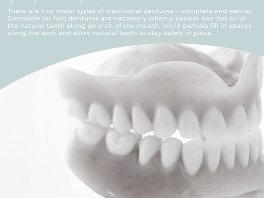 Which Type of Denture is Right For Me?