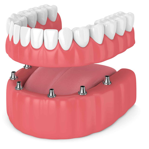 THE BENEFITS OF IMPLANT-RETAINED DENTURES IN JACKSONVILLE