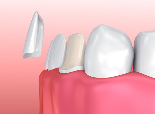 Porcelain Veneers vs Composite Veneers