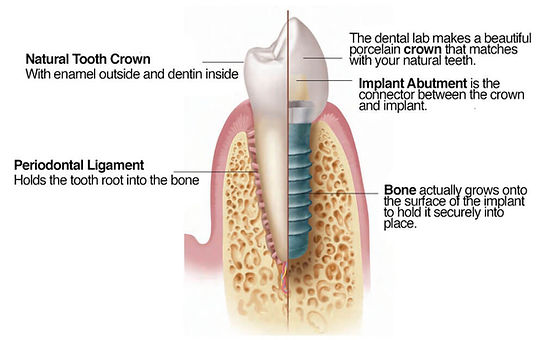 Anatomy-of-an-Implant.jpg