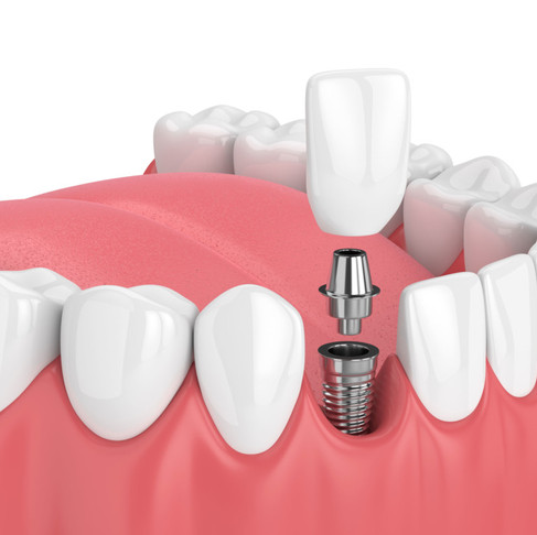 6 REASONS WHY DENTAL IMPLANTS IN JACKSONVILLE ARE RIGHT FOR YOU