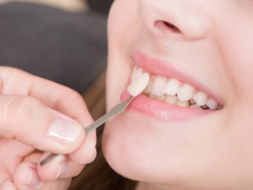 PORCELAIN VENEERS ARE AN EASY WAY TO GET A BRAND NEW SMILE