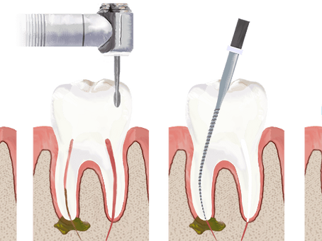 What are the myths around root canal treatment?