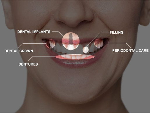 Dental Implants are Permanent