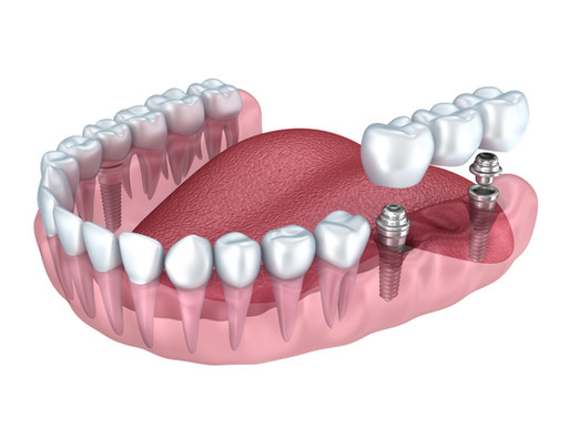 How Dental Implants and Osseointegration Were Discovered