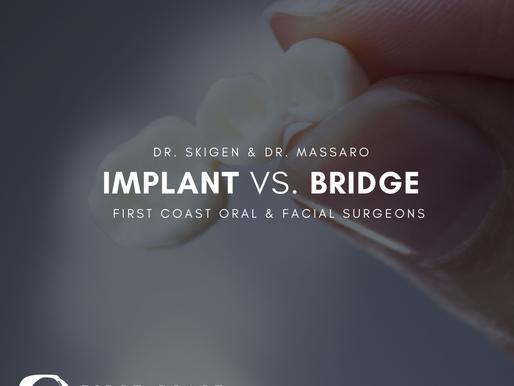 Dental Implants vs Bridges