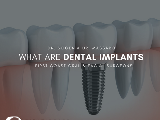 What Are Dental Implants | Jacksonville, FL | Oral Surgery