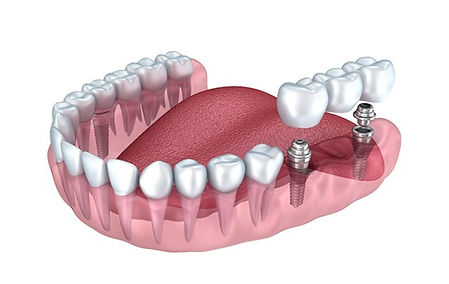 implant-cost-1.jpg