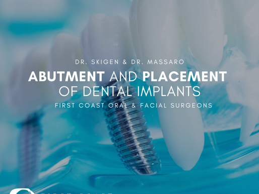 Abutment and Placement of Dental Implants