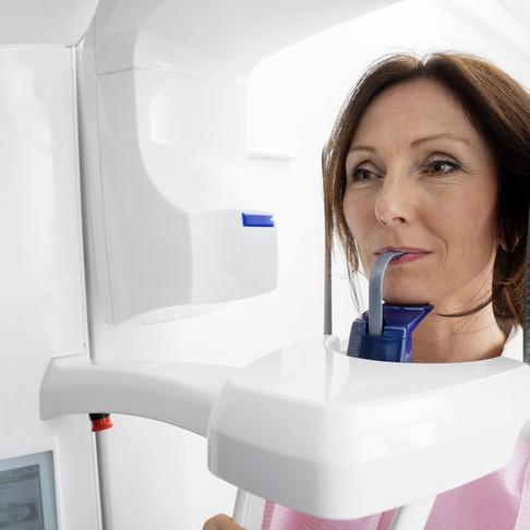 CT Beam X-Ray