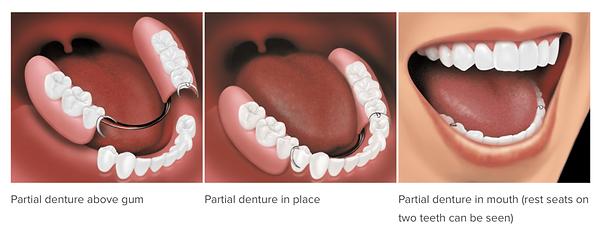 Partial Denture.png