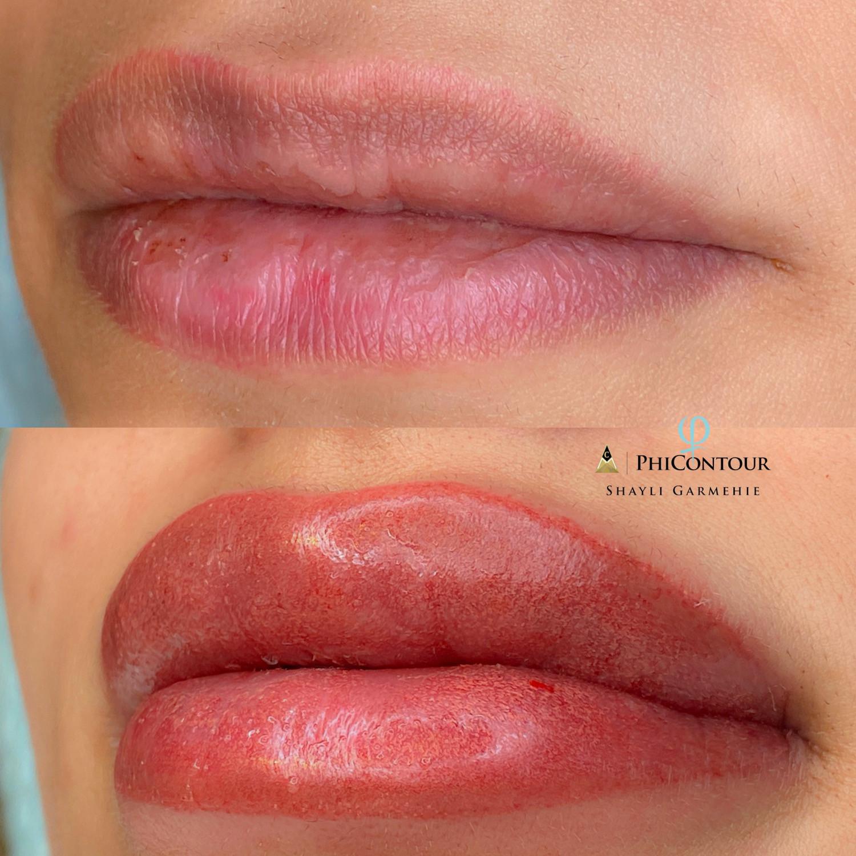 Dark Lip Neutralization $600