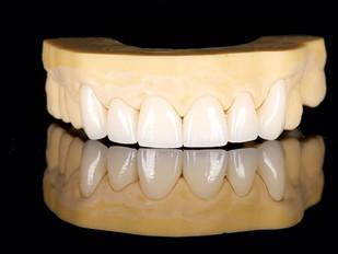 3DM resins for dental applications