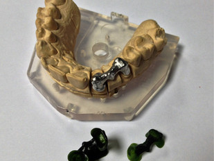 Uses of the 3DM-CAST 2.0 resin in Dental Laboratories