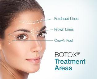 botox 01.jpg