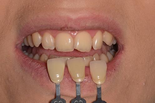 estetska stomatologija.JPG