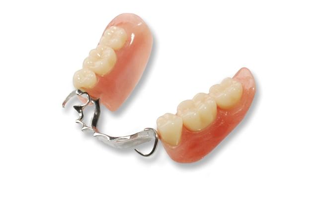 Cast-Metal-Partial-Dentures