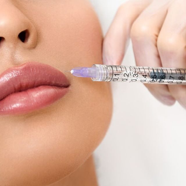 Lip fillers 15% off November only !!_Gra