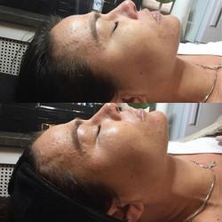 Efter en behandling med BB glow⚡️För bäs