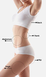 treatment areas.jpg
