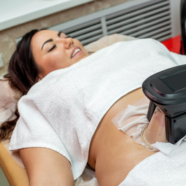 Woman getting cryolipolysis fat treatmen