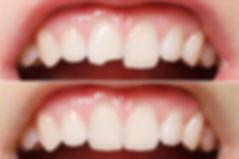 dentalux восстановление коронковой части зуба.jpg