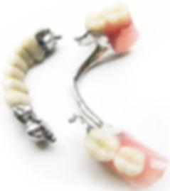 denta luks lubertsy замковый бюгельный протез.jpg