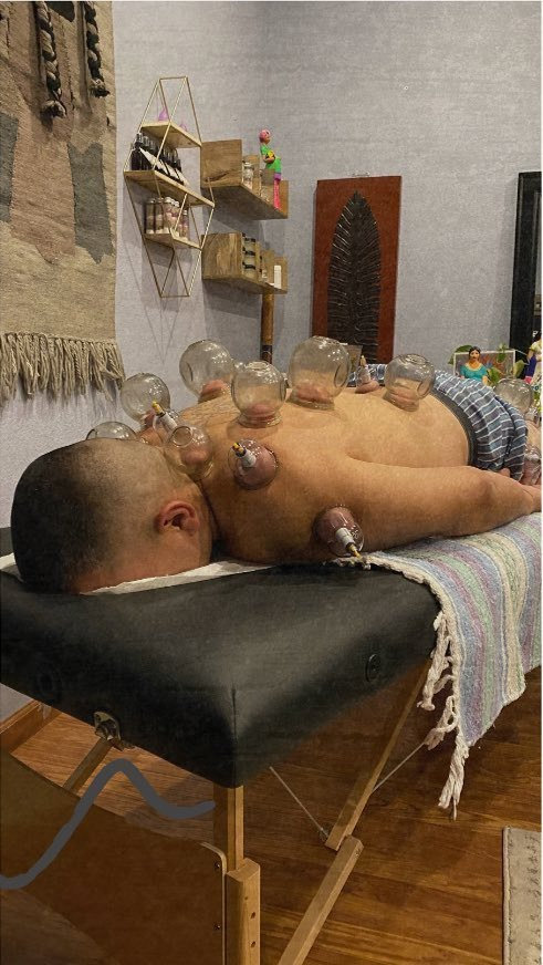 Ventosas (Fire Cupping)