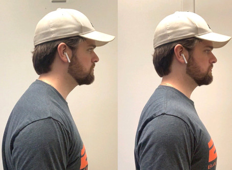"Fix your ""Tech Neck"": Correcting your posture without expensive gadgets"