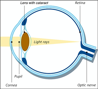 Eye & cataract.png