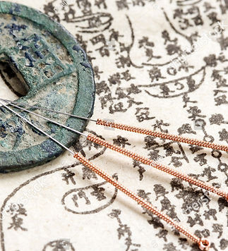 stock-photo-acupuncture-needles-and-anci