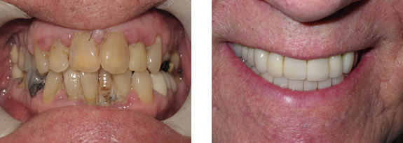Dental Crowns pic