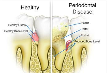 Periodontal Disease pic