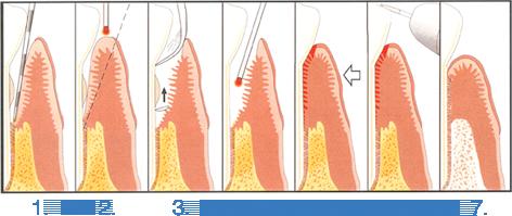 Laser Dentistry pic