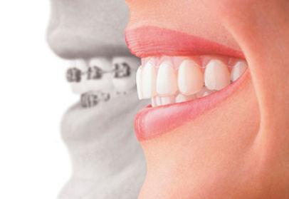Orthodontics braces pic