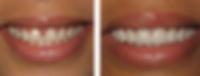 Teeth venners
