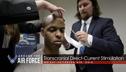 Transcranial-Direct-Current-Stimulation-