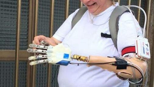 bionic-hand-pic.jpg