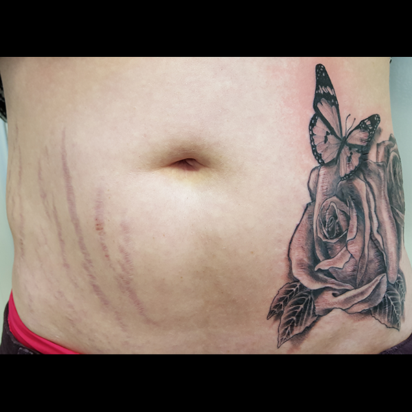 stretch-mark-cover-up-tattoo-stage1