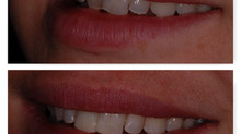 Same day smile makeover with composite veneers