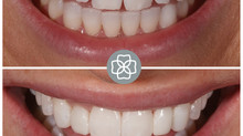 No Drill Smile Makeover with Composite Veneers