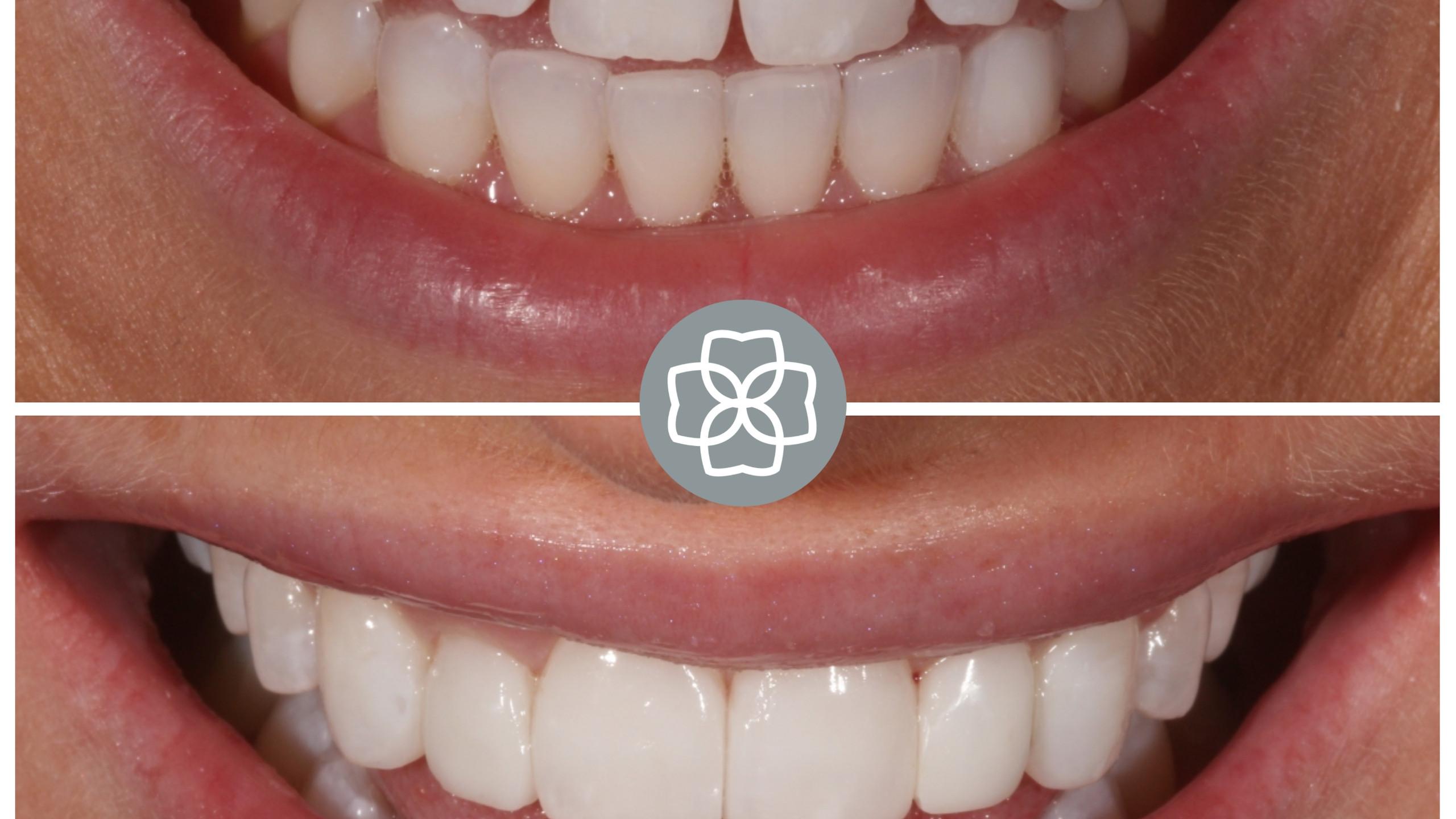 Composite veneer smile makeover