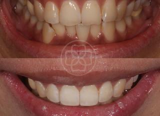 Minimally Invasive Smile Makeover