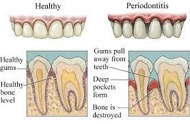 Healthy gums vs periodontitis